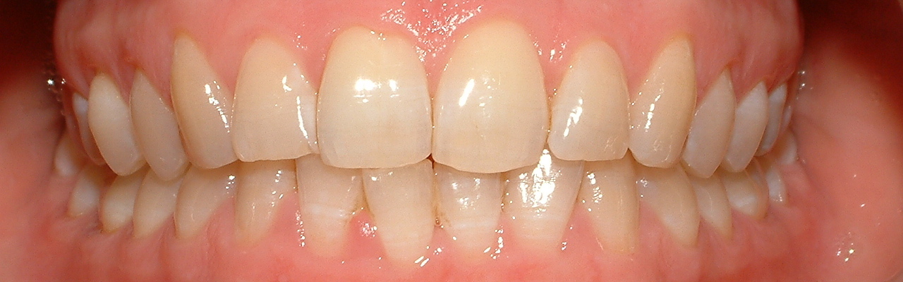 Healthy adult dentition