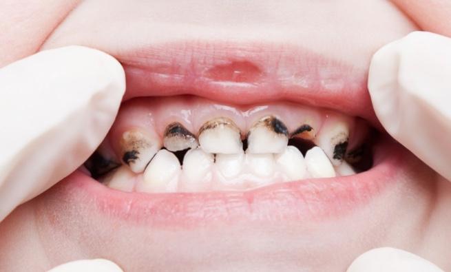 Caries teeth decay – Version 2